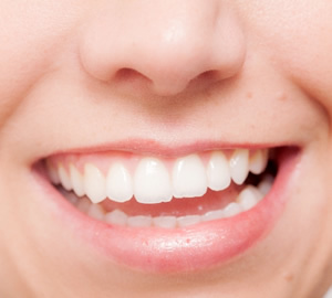 ご家庭でできる歯のホワイトニング